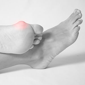Bunions—Podiatrists in NT